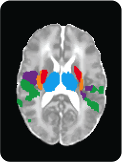 fMRI image of brain regions which respond to noxious stimuli in infants.